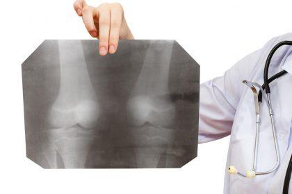 「骨端線 損傷」アイキャッチ画像